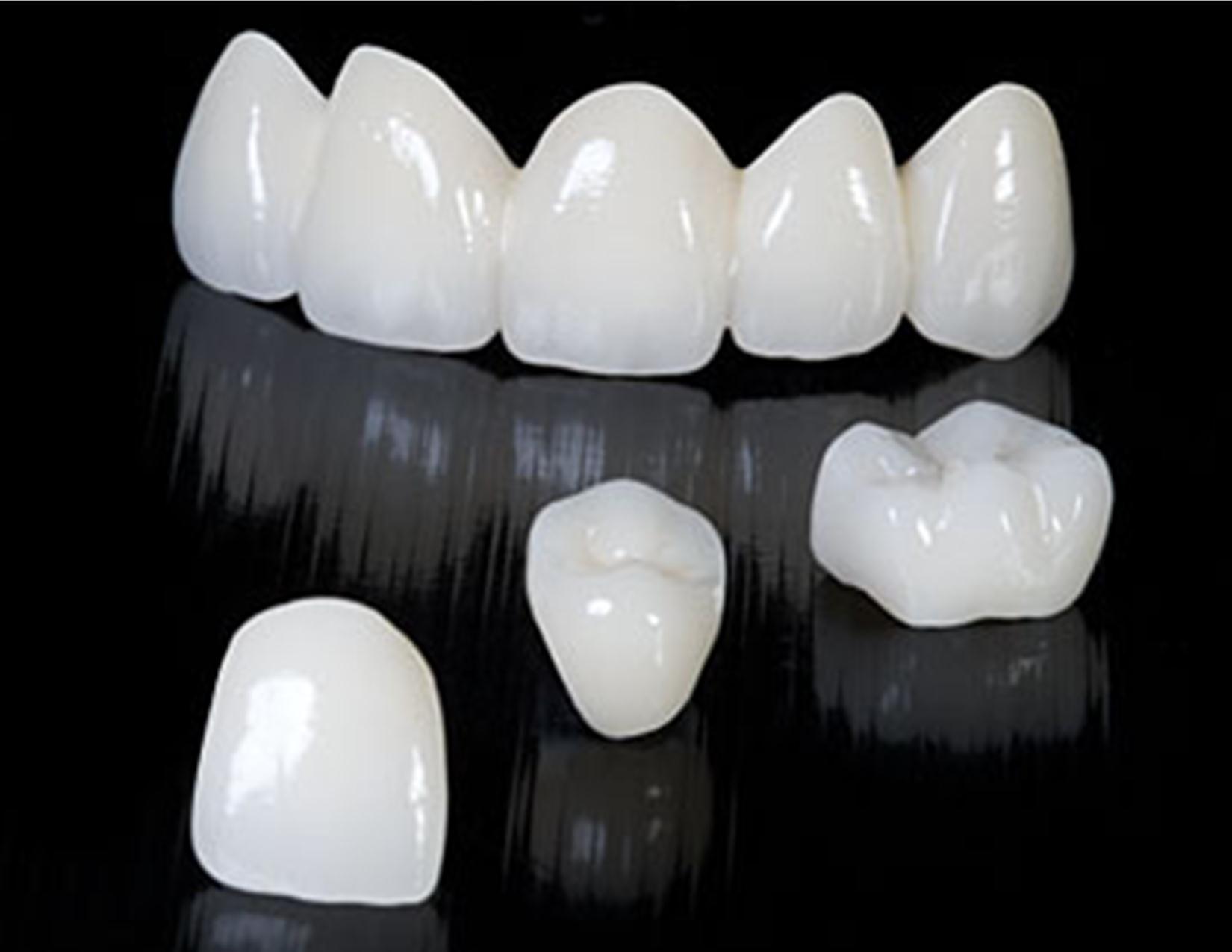 коронки на зуб из металлокерамики